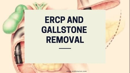 ERCP and Gallstone Removal