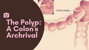 The Polyp:A Colon's Archrival